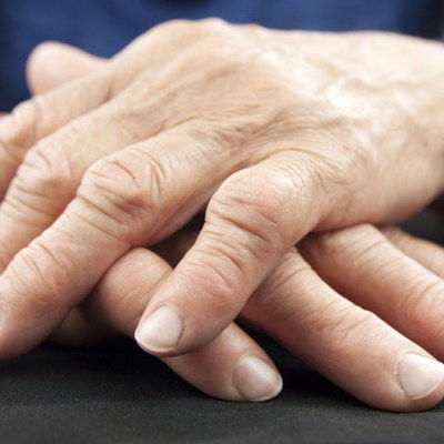 artrite_reumatoide_vitD