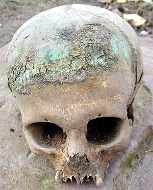 Meistens wurden jungfräuliche Mädchen mit diesen Totenkronen bestattet.
