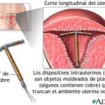 dispositivos intrauterinos