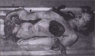 corpse body at concentration camp