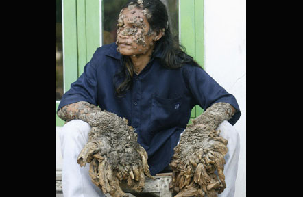 IndonesianTreeMan2