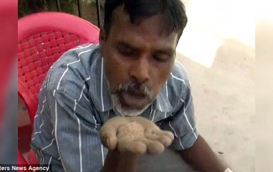 Indian Man Has Eaten Sand Daily For Twenty-Five Years
