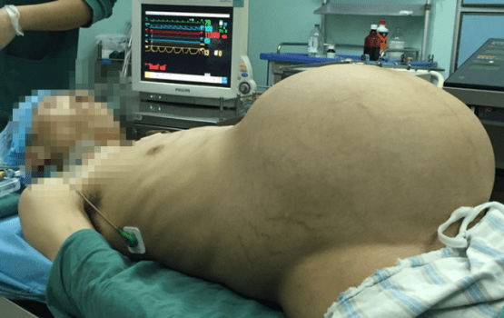 Pregnant Man Gives 'Birth'