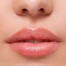 Lippenunterspritzen, Lippen formen, Lippen aufspritzen, Lippen vergrößern