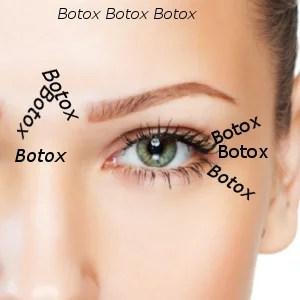Hinweise und Tipps zu Ihrer Behandlung mit Botox Hannover