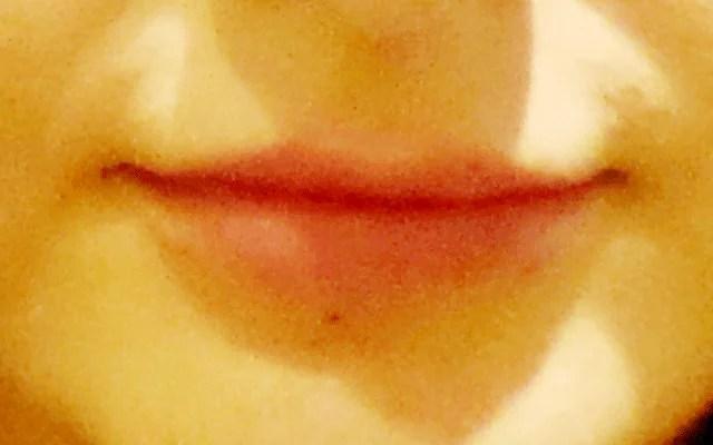 Lippen aufspritzen kein Botox Vorher-Nachher-Bild