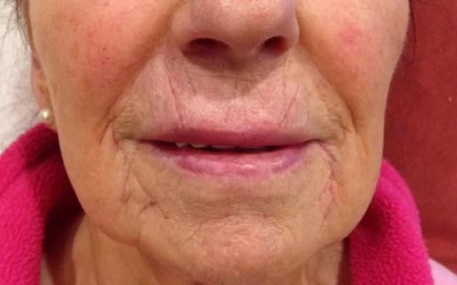 Lippen vergrößern Vorher-Nachher-Bild