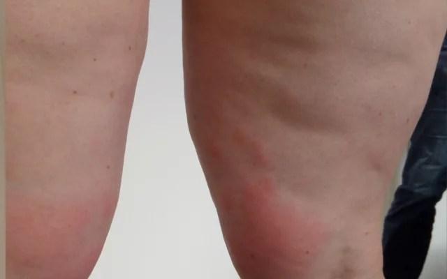 Cellulite Eissauna Kryosauna Vorher-Nachher-Bild