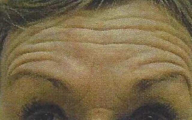 Sorgenfalten Botox Vorher-Nachher-Bild