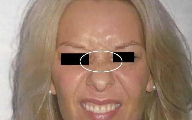 Bunnyfalten Botox Vorher-Nachher-Bild