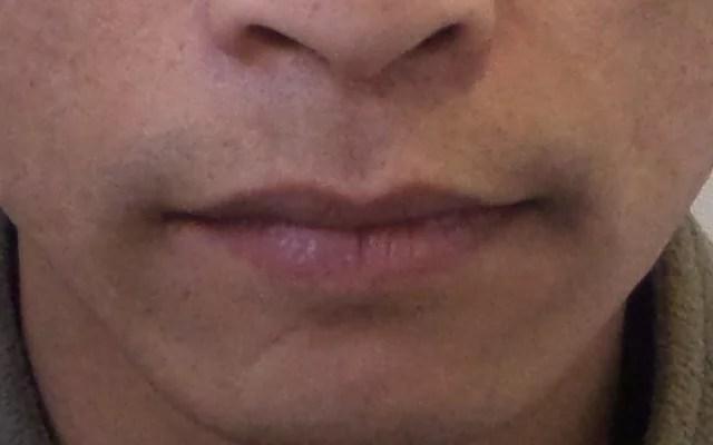 Lippen aufspritzen Mann Vorher-Nachher-Bild
