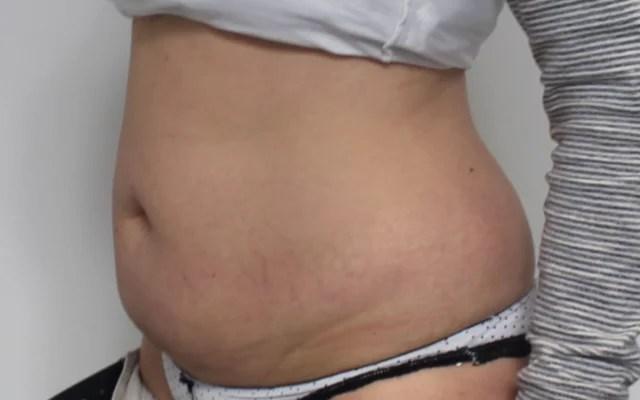 Kryolipolyse Bauch Taille Vorher-Nachher-Bild