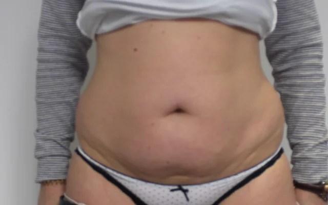 Kryolipolyse Bauch Vorher-Nachher-Bild