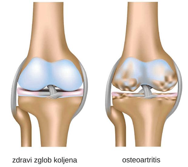 zdravi-zglob-koljena-e1424251511542