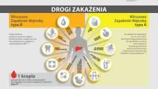 Infografika-Wirusowe-Zapalenie-W_troby_small