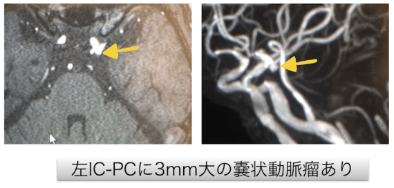 lt IC-PC aneurysm mra findings