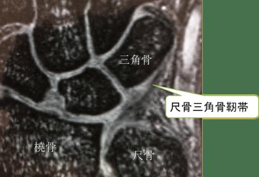 TFCC anatomy of mri2