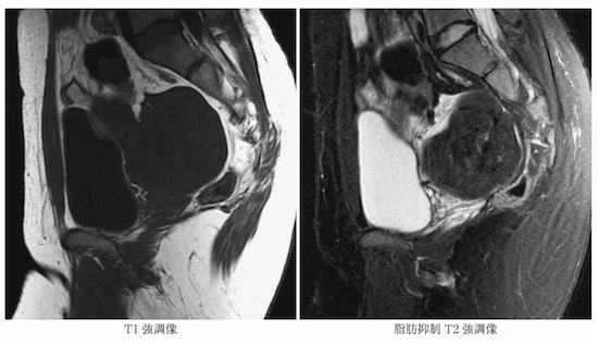 T2WI low intensity ovarian tumor1