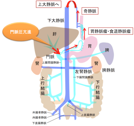 cardiac and esophageal varices