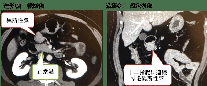 ectopic-pancreas-ct-findings