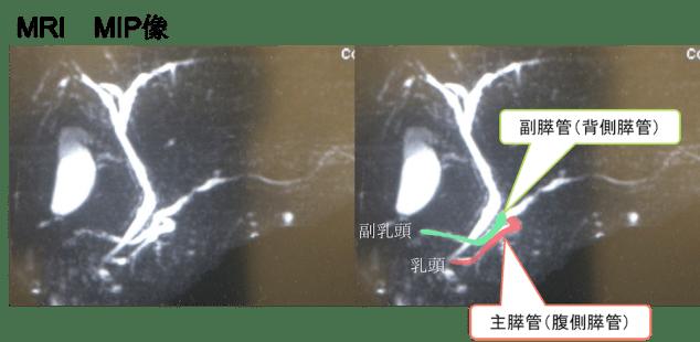 pancreas divisum mri findings2