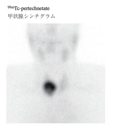 plummer disease scintigraphy 99mTc-pertechnetate