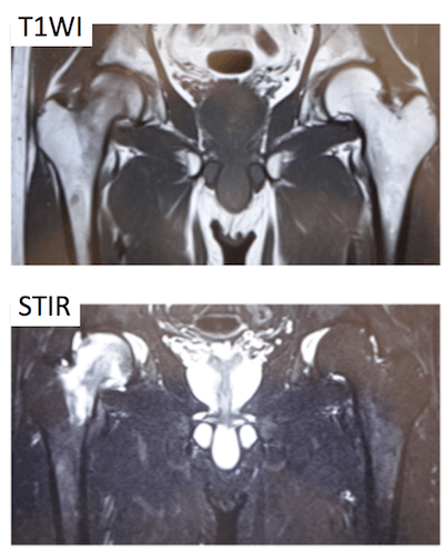 taransient osteoporosis of the hip1
