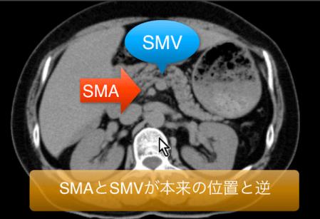 midgut-malrotation1