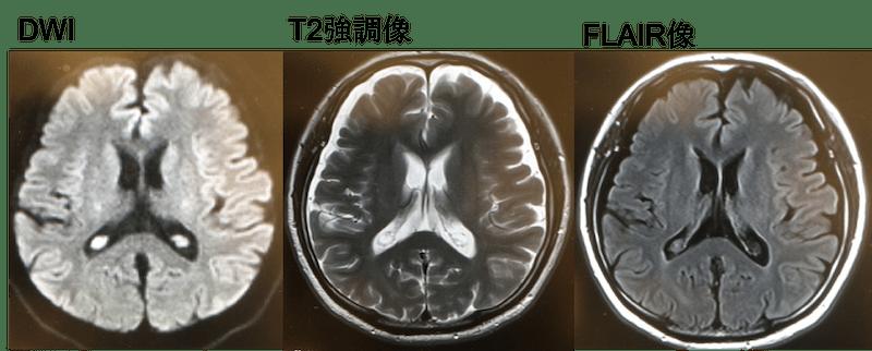 choroid plexus cyst MRI findings