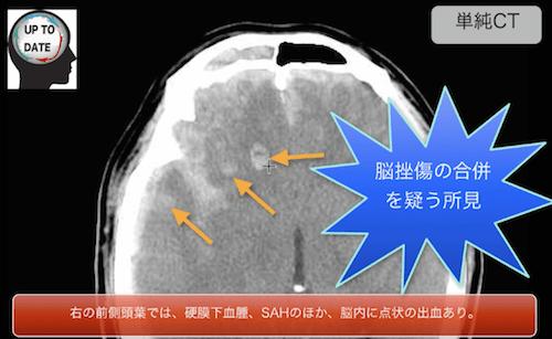 acute subdural hematoma1