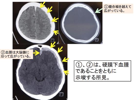 acute subdural hematoma