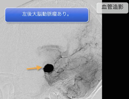 giant aneurysm2