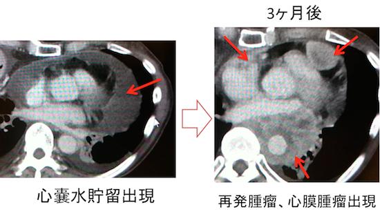 metastatic pericardial tumor