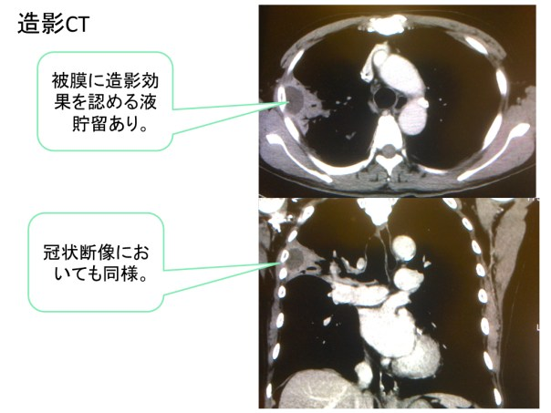 lung-abscess-ct-findings-002