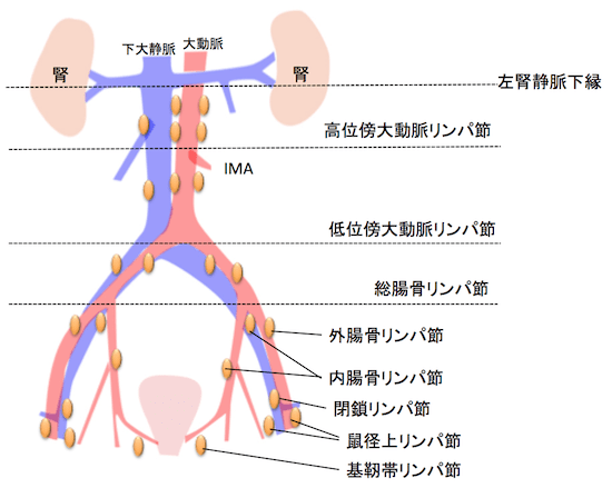 pelvic-lymph-node1
