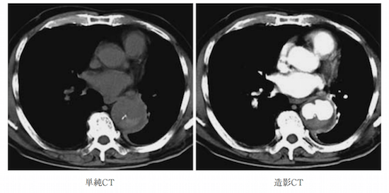 INFECTED AORTIC ANEURYSM