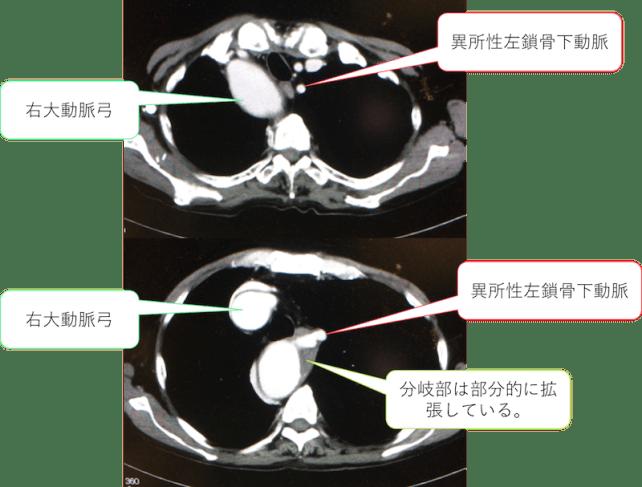 aberrant-left-subclavian-artery1