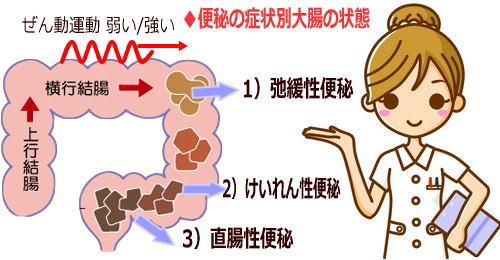 便秘の症状での大腸