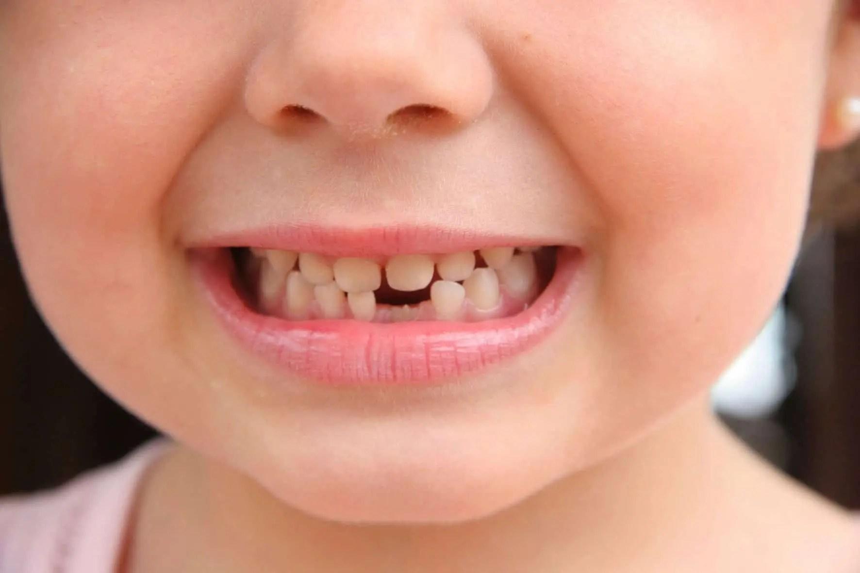 imagem de uma criança com dentes faltando