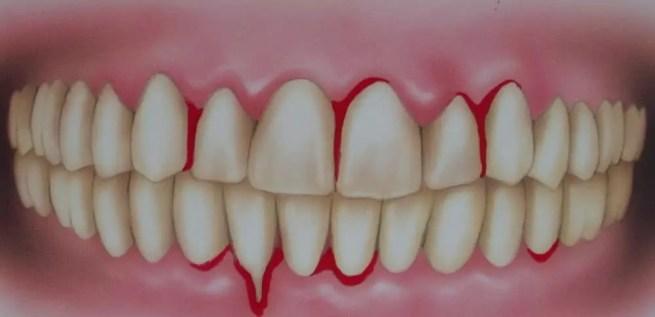 dentes com sangramento gengival