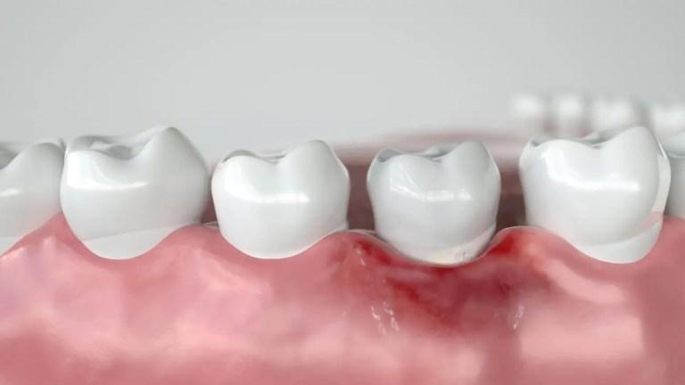 dente com gengiva inflamada