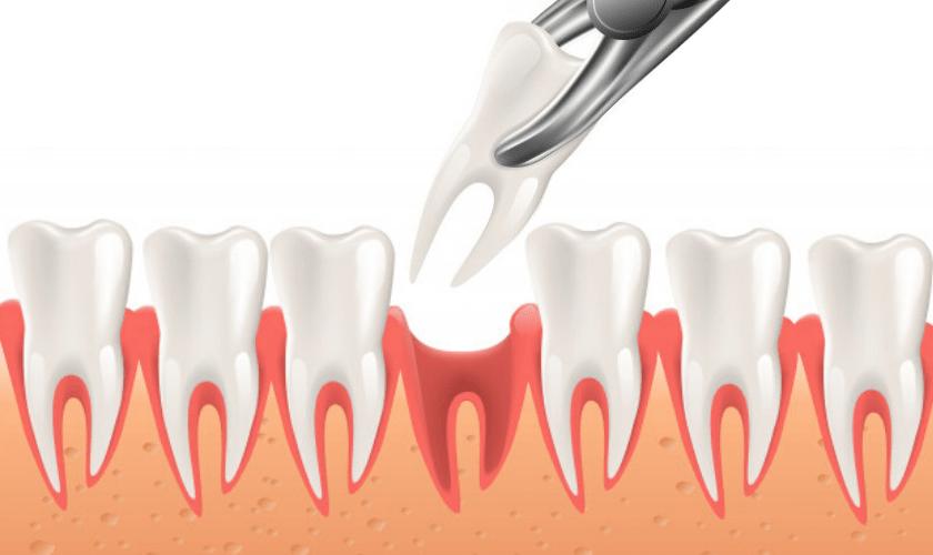 O que comer após extração de dente