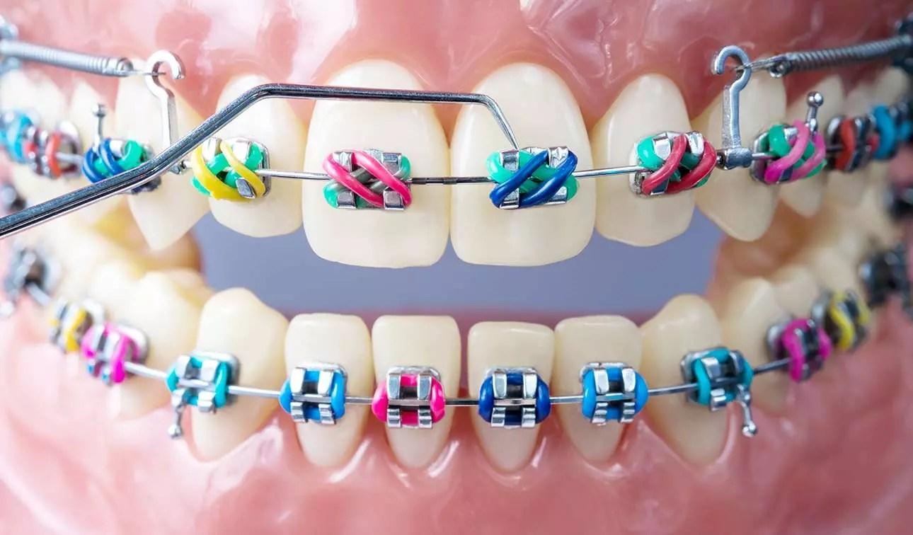 tempo aparelho ortodontico