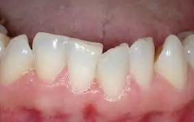 Apinhamento dos dentes