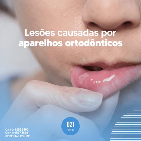 Lesões causadas por aparelhos (1)