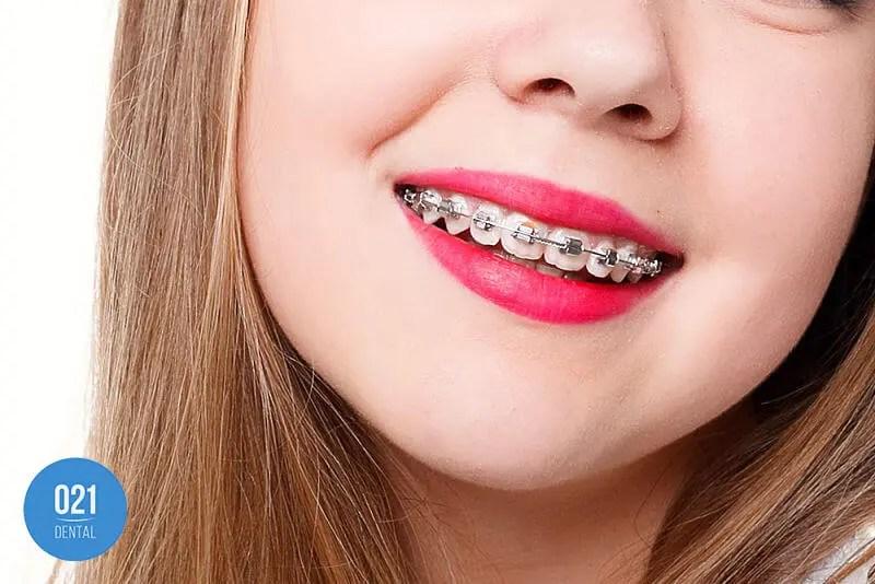 Dentes tortos: conheça os possíveis tratamentos