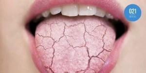 Imagem ilustrativa de língua cheia de rachaduras para representar o sintoma da boca seca