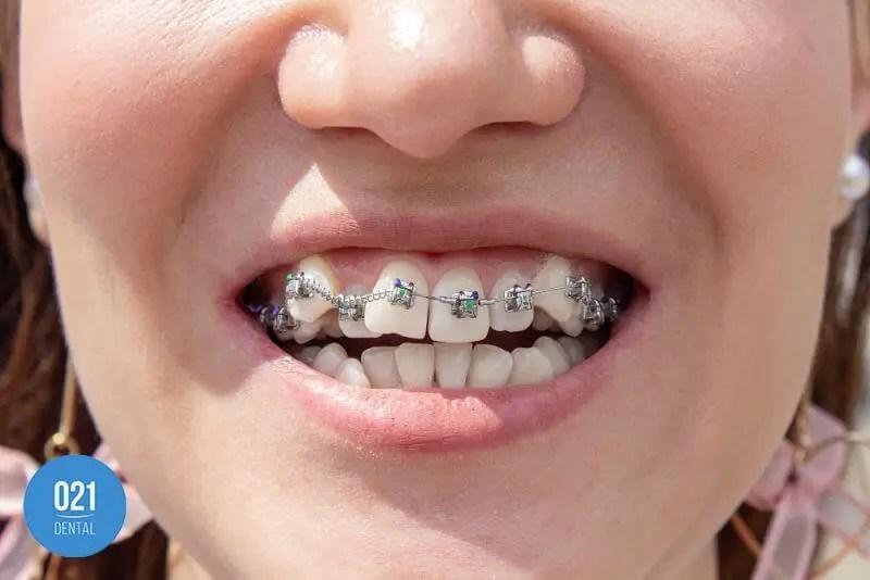 aparelho ortodontico para correção de mordida cruzada