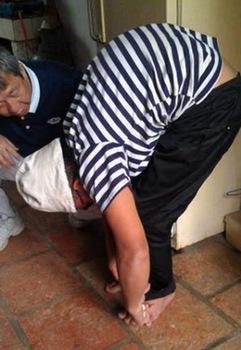 楊曉東手術前照片