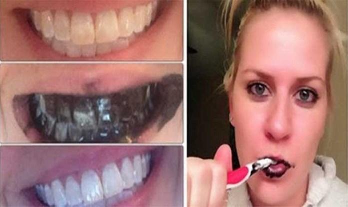 dentes_brancos_limpar_carvao_ativo